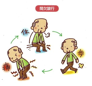 間欠性跛行