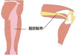 スポーツ障害 膝