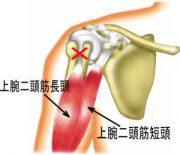 二頭筋腱炎症