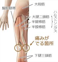 膝の裏 痛い