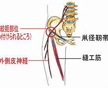 外側大腿皮神経痛