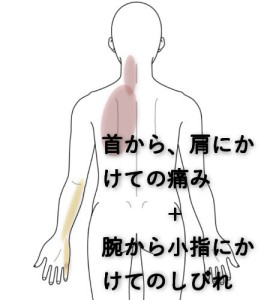 肩首のしびれ